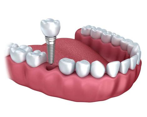 Single and Multiple Dental Implants