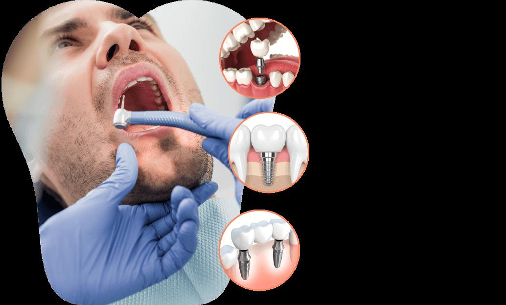 dental-implant-solution